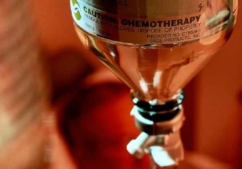 شیمی درمانی2