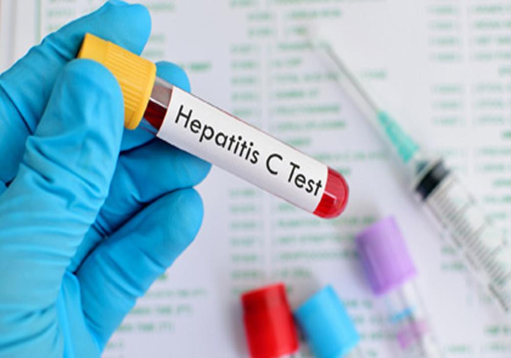 هپاتیت222